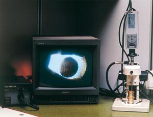 Endoscope-video